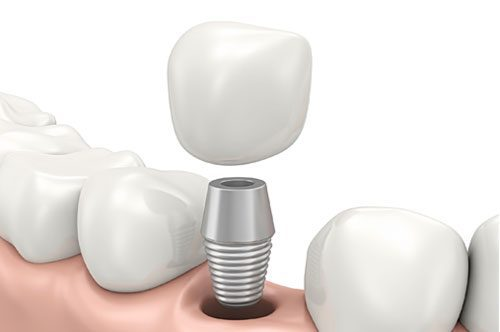 Eat All Your Favorite Foods With Teeth Implants