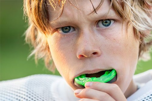 The Dentist In Bryan WIth Athletic Mouthguards [VIDEO]